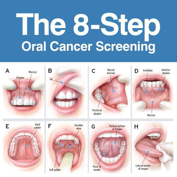 cancer -screening - chart